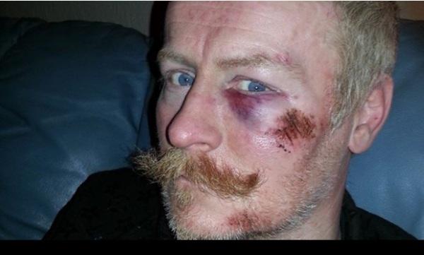 UK police brutality